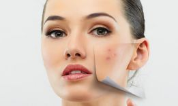 How to Get Rid of Acne Fast Without Buying Anything?
