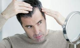 9 Methods, How to Fix Receding Hairline