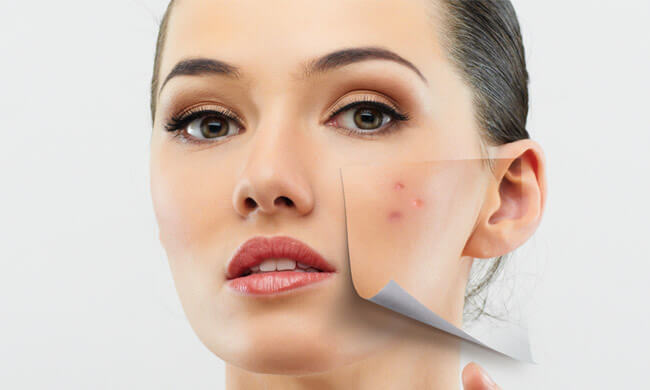 how-to-get-rid-of-acne-fast-without-buying-anything