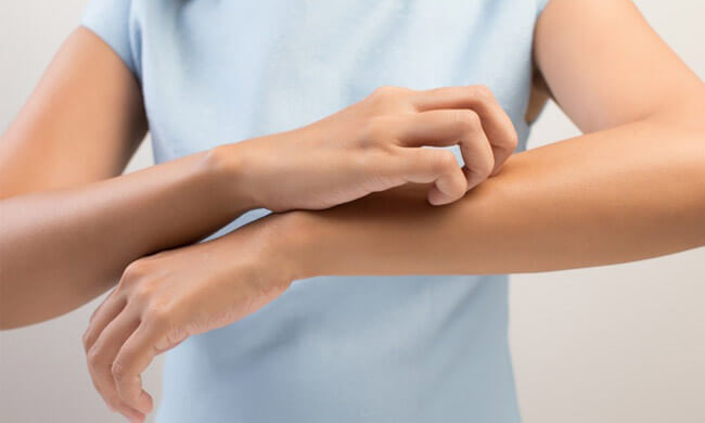 how-to-get-rid-of-scabies-in-the-house
