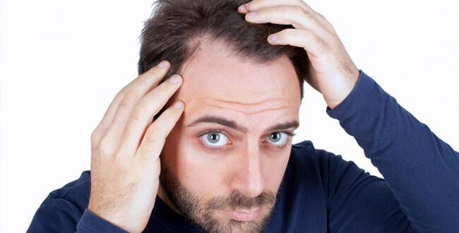 How To Stop Receding Hairline 9 Methods